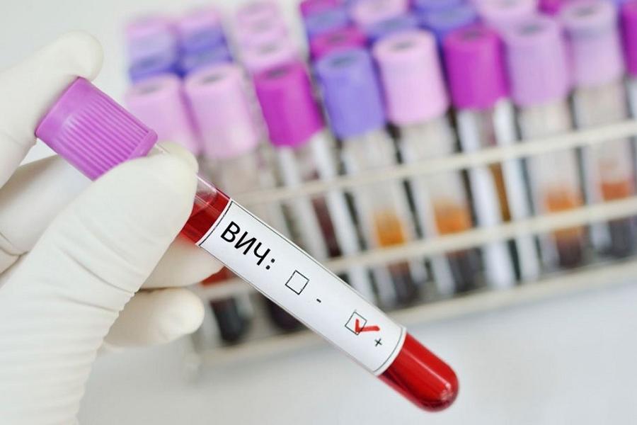 ВИЧ-статус положительный